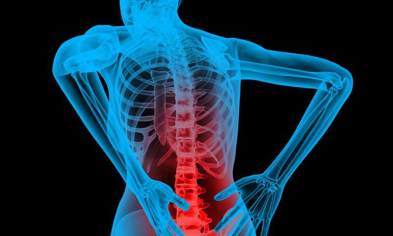 انحنای غیرطبیعی ستون فقرات علل ایجاد کمردرد