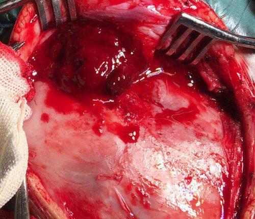 جراحی تومور مغز وچشم در کودک یک ساله