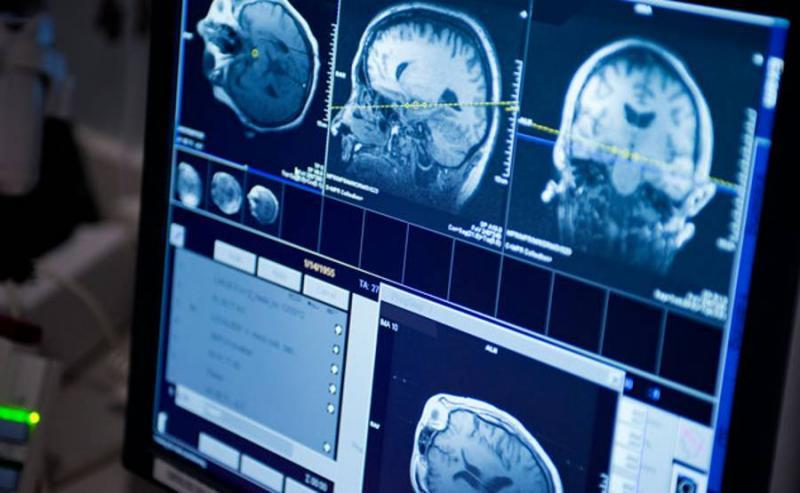 ct اسکن مغز