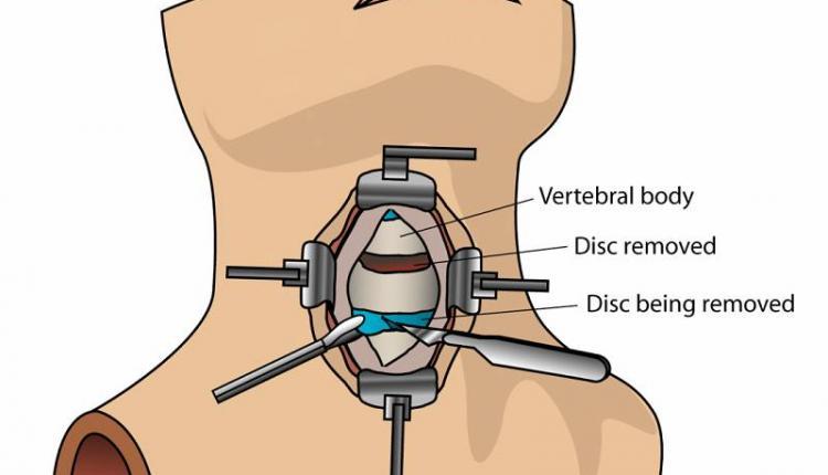 جراحی دیسک گردن از جلو