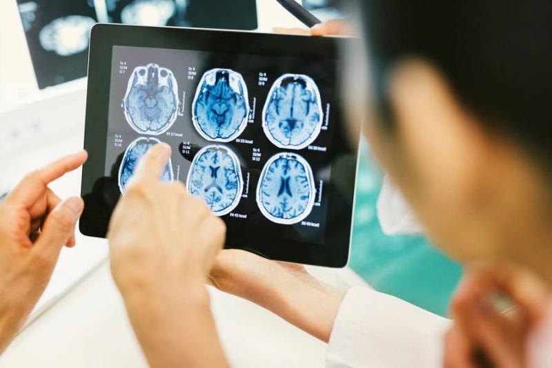 انواع تومور مغز