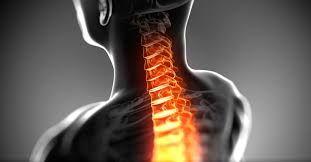 جراحی دیسک گردن
