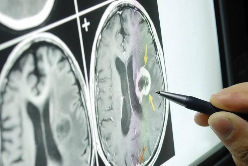 بهترین جراح تومور مغزی