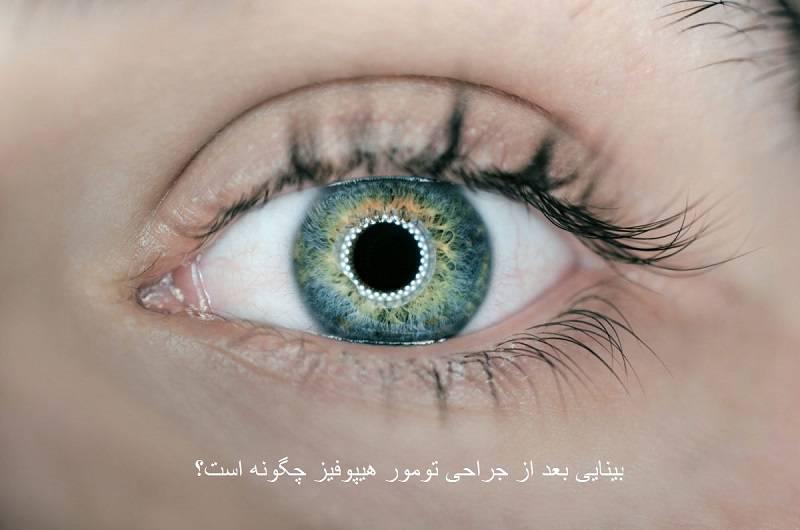 بینایی بعد از عمل هیپوفیز