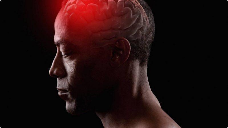 انواع آنوريسم مغزى