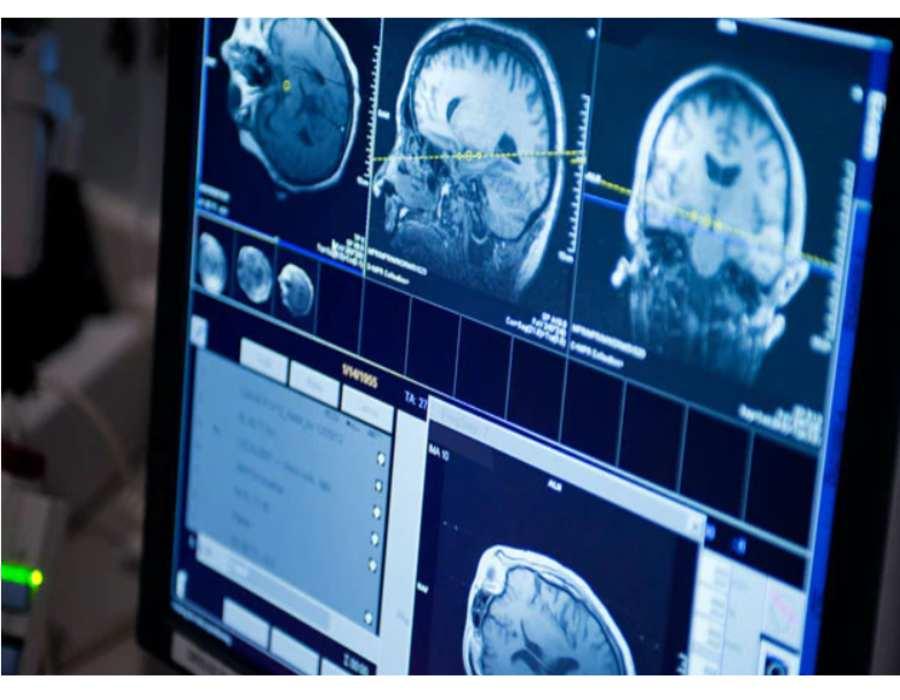 تشخیص تومور گلیوما