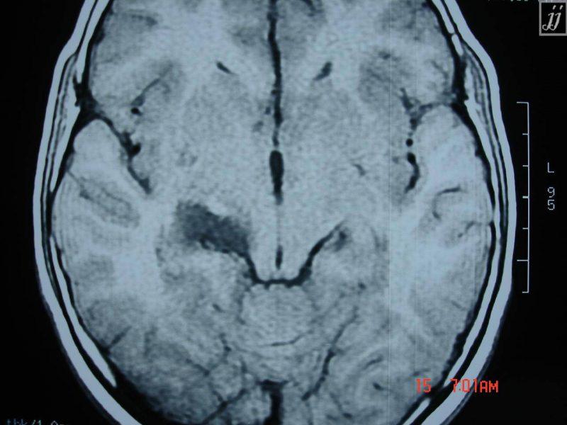 درمان کیست آراکنوئید