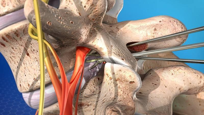 جراحی دیسککتومی