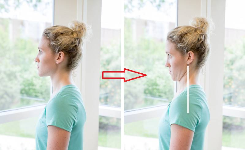 حرکت چانه برای بهبود درد دیسک گردن
