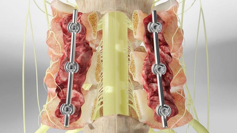 جراحی لامینکتومی دیسک 5 و 6 گردن