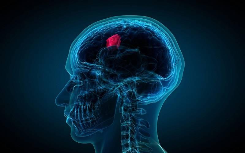 تومور مغزی بدخیم در چه افرادی بیشتر رخ می دهد؟