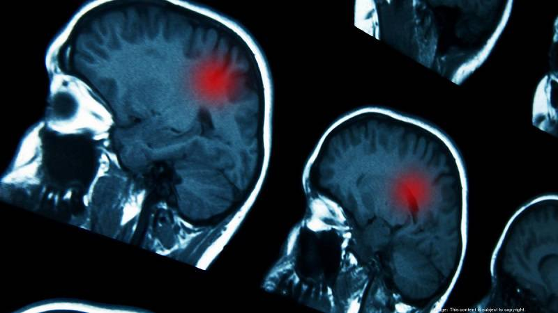 تومور مغزی خوش خیم