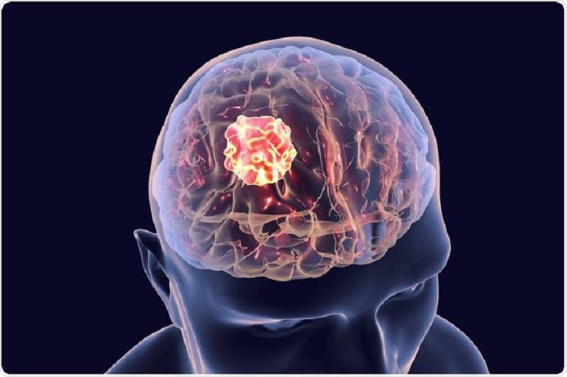 درمان تومور مغزی خوش خیم