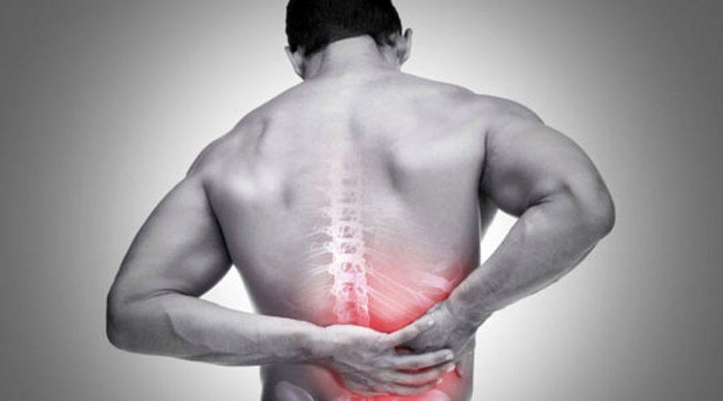 کمر درد ناشی از سرطان
