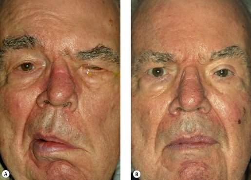علت منقبض شدن عضلات صورت