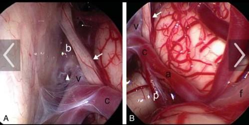 جراحی صورت در اسپاسم عضلات صورت