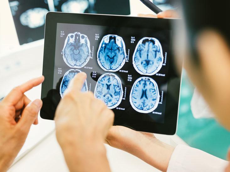 علائم سرطان مغز