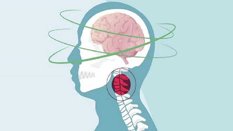 تشخیص سرگیجه گردنی