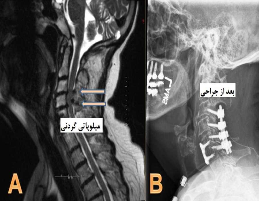 میلوپاتی گردنی
