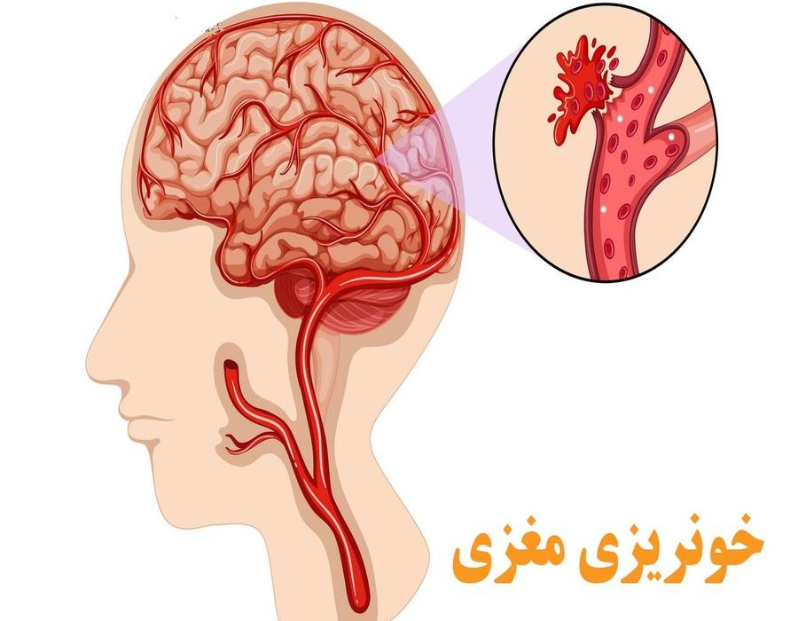 خونریزی مغزی چیست