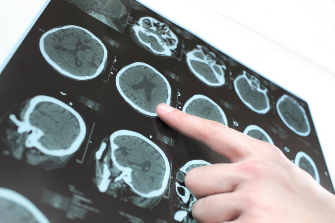 تشخیص خونریزی مغزی