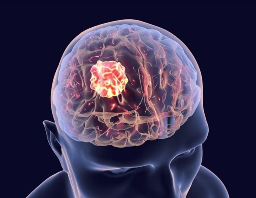 به وجود آمدن تومور مغزی