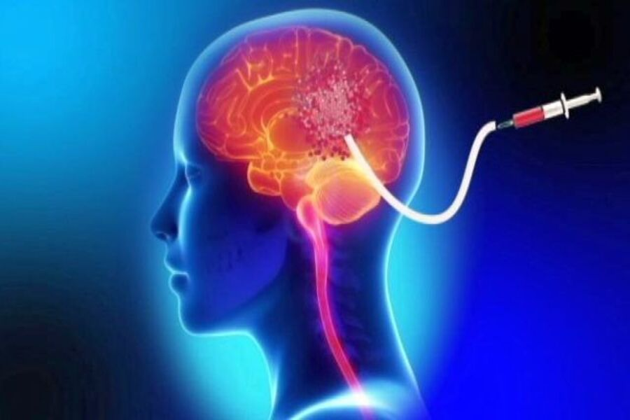 درمان تومور مغزی با ایمونوتراپی